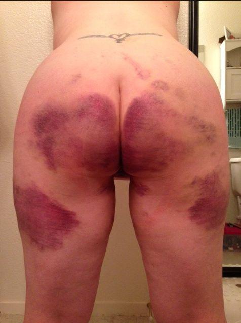 Spanking com marcas maiores - BDSM